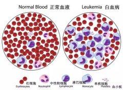白血病细胞会跑到脑里去吗?
